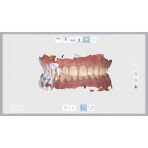Medit i500 - интраоральный (внутриротовой) 3D-сканер