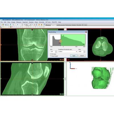 Программное обеспечение Materialise Mimics Innovation Suite