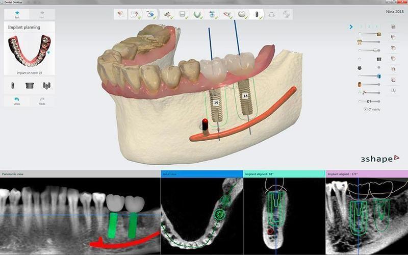 рентген и челюсть