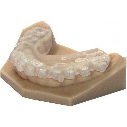 челюсть с накладным протезом