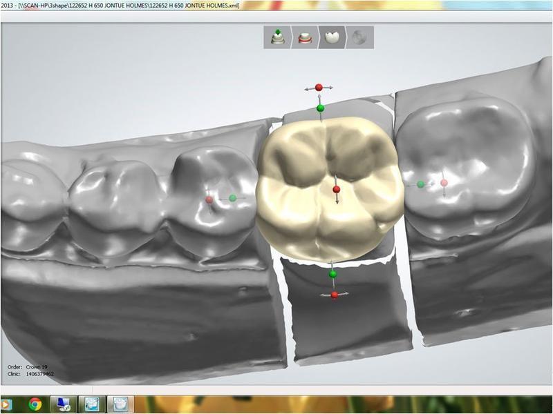 зуб схема