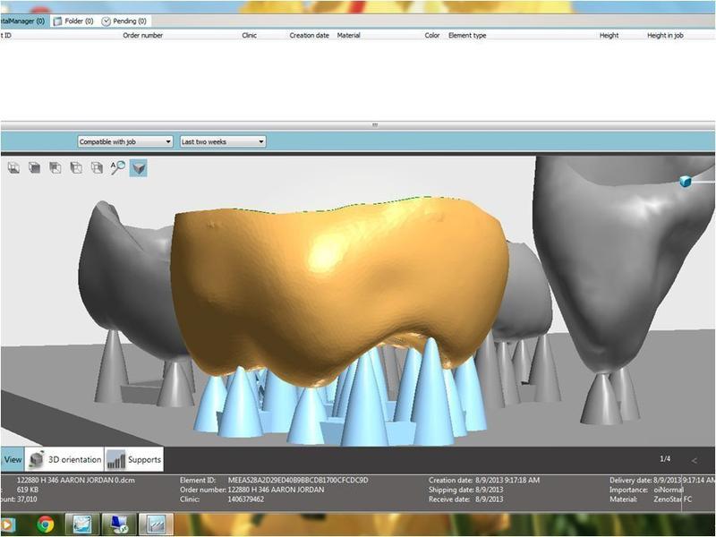 схема зубов