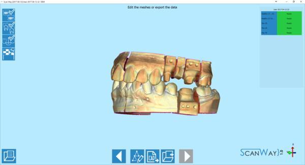 челюсть скан