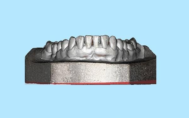 скан челюсти