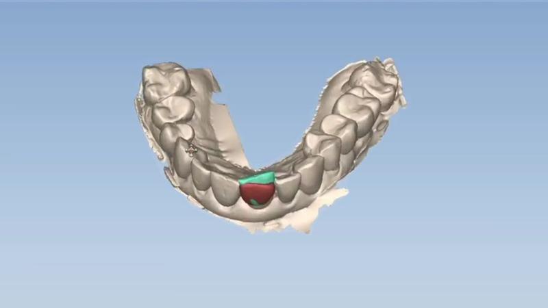 зубная дуга
