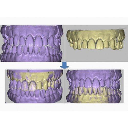 сканы зубов