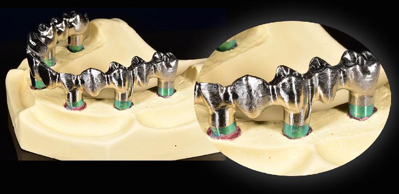 сканирование зубного протеза