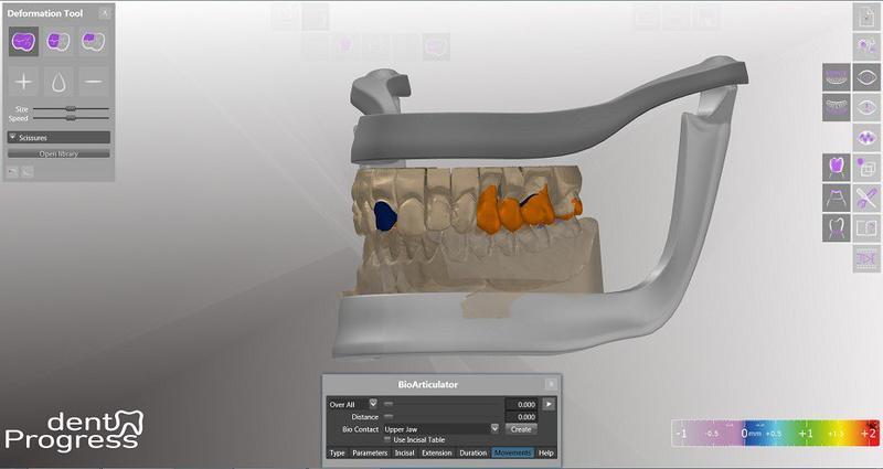 сканирование челюсти
