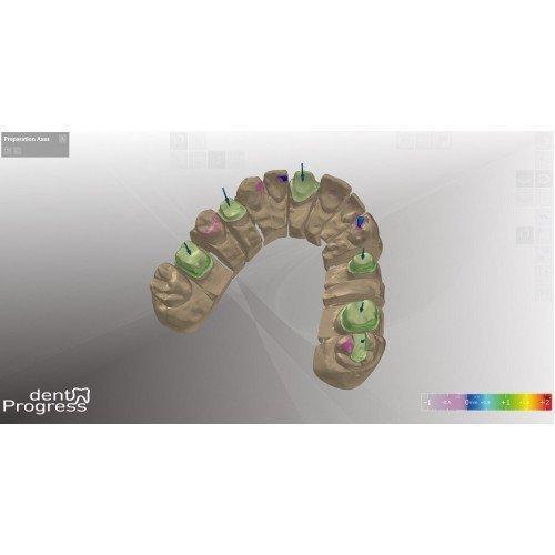 нижний зубной ряд